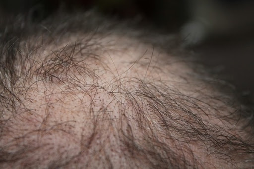 4 Effective Tips to Stop Hair Loss in Men