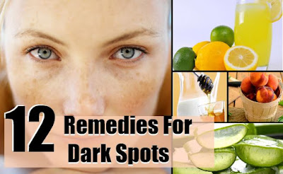 12 Ways to Eliminate Black Spots Quickly, Naturally & Safely | Healthy and Beautiful