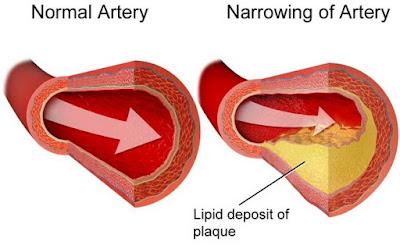 Terapi Kolesterol Tinggi Dengan Minyak Varash