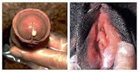 Obat Sipilis Tradisional di Apotik pada Pria dan Wanita
