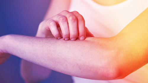Remedios Caseros para la Picazon de la Psoriasis