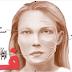 شلل العصب الوجهي (شلل بيل .شلل العصب السابع)