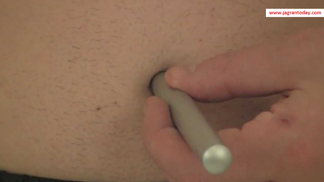 Permanent Solution for Navel Displacement