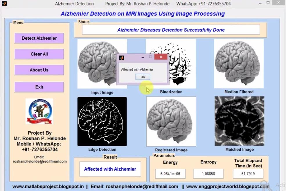 Matlab Code for Alzheimer Detection on MRI Images Using Image