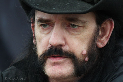 Lemmy facial moles removed
