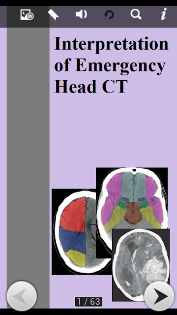 https://play.google.com/store/apps/details?id=com.Interpretation.EmergencyHeadCT.AOWBACJUNNIBUDQC