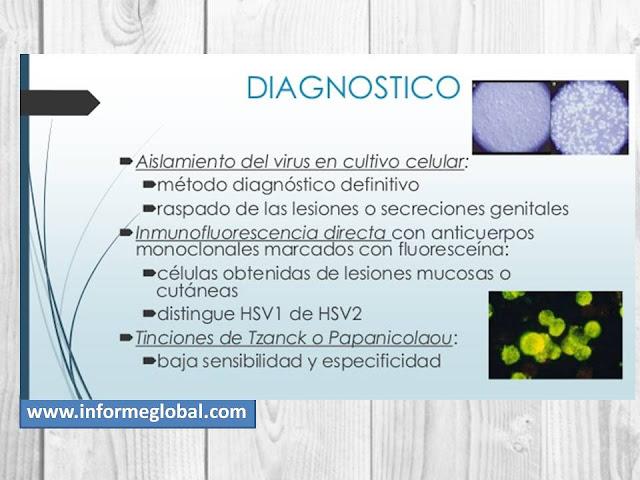 como diagnosticar el herpes simplex