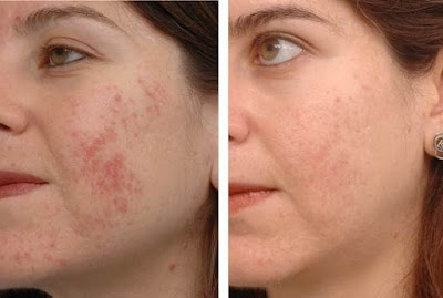 Does Aloe Vera Help Acne
