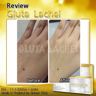 Testimoni Gluta Lachel Whitening Skinest Original