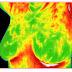 Fique alerta: termografia não substitui a mamografia