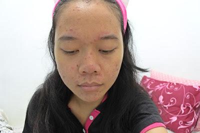 Bare face sebelum memakai masker kefir
