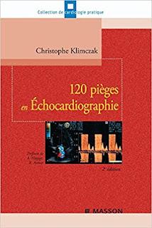 120 pièges en Échocardiographie 51DVPaQ9I1L._SX332_BO1%252C204%252C203%252C200_