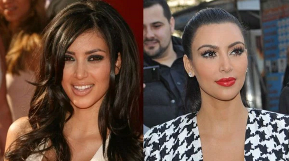 Kim Kardashian Plastic Surgery Before and After Nose Job, Botox and Facelift  Star Plastic