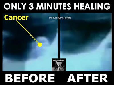 Proses Penyembuhan Kanker Dengan Kekuatan Fikiran dalam 3 Menit