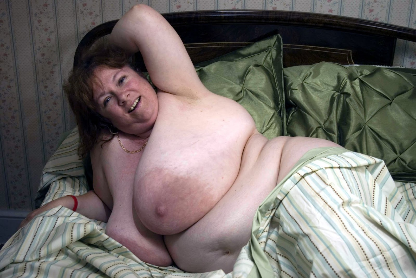 Fat Areola 96