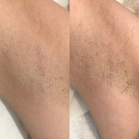 First Impressions: My IPL Lazer Hair Removal Treatment with Jodie's IPL Hair Removal and Skin Rejuvenation
