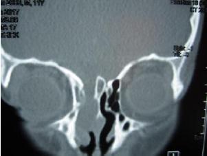 آشعة-مقطعية-تسرب-السائل-النخاعي