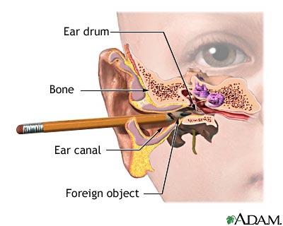 காதுகளை நாமாக சுத்தம் செய்யக்கூடாது | We should clean the ears !