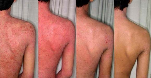 Penyakit Kulit Ekzema Sebelum Dan Selepas
