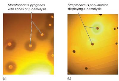 bakteri Streptococcus adalah, ciri ciri bakteri Streptococcus, koloni bakteri Streptococcus, mengapa bakteri Streptococcus menyebabkan penakit, racun pada bakteri Streptococcus, enzim pada bakteri Streptococcus, klasifikasi bakteri Streptococcus, antigen permukaan pada bakteri Streptococcus