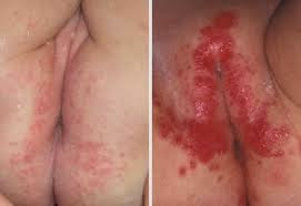 Gambar Penyakit gatal bersisik merah dan panas pada kulit selangkangan