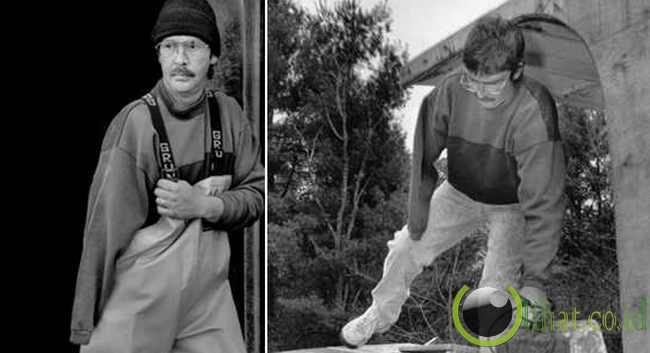Douglas Goodale,Born 1965....Amputasi tangan kanan