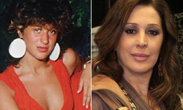 Claudia Raia antes e depois da cirurgia no nariz