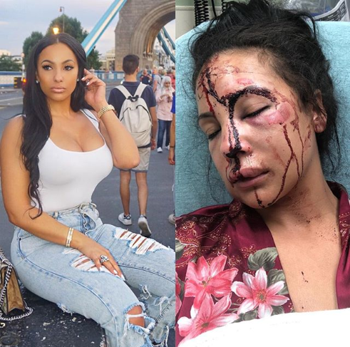 NFL star LeSean McCoy allegedly brutalized his girlfriend as horrific photo of her bloodied face surfaces online