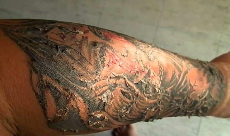 The Ultimate Day By Day Guide of Tattoo Healing Process With