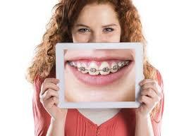 Tư vấn tiến trình niềng răng chỉnh nha chuẩn nhất