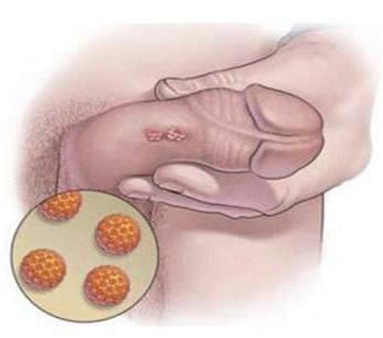 carcinoma del pene)