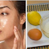 Natural Face Mask For Oily Skin And Helps Fight Acne