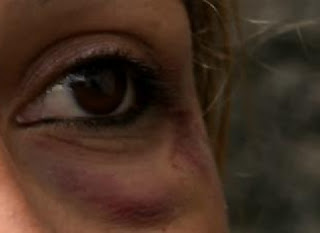 Primeira dama de cidade paraibana é sequestrada e agredida