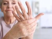 Mujeres sufren más de artritis que los hombres