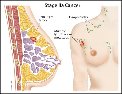 Cara Mengobati Kanker Payudara Herbal Alami