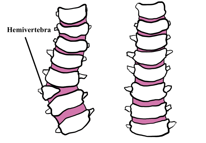 Hemivertebrae dogs