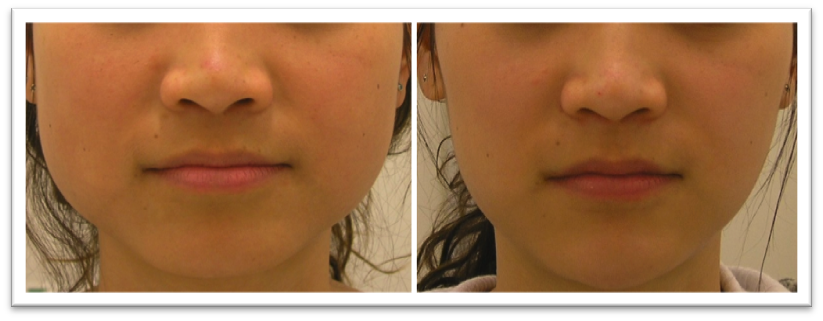 Non Surgical Face Reshaping