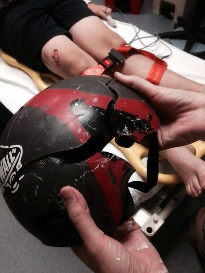 15 Reasons Why Wearing A Helmet Is Always A Good Idea - And This, Kids, Is Why We Wear Helmets When We Skateboard