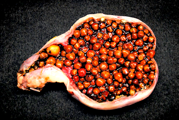 PICTURES OF GALL STONES:--