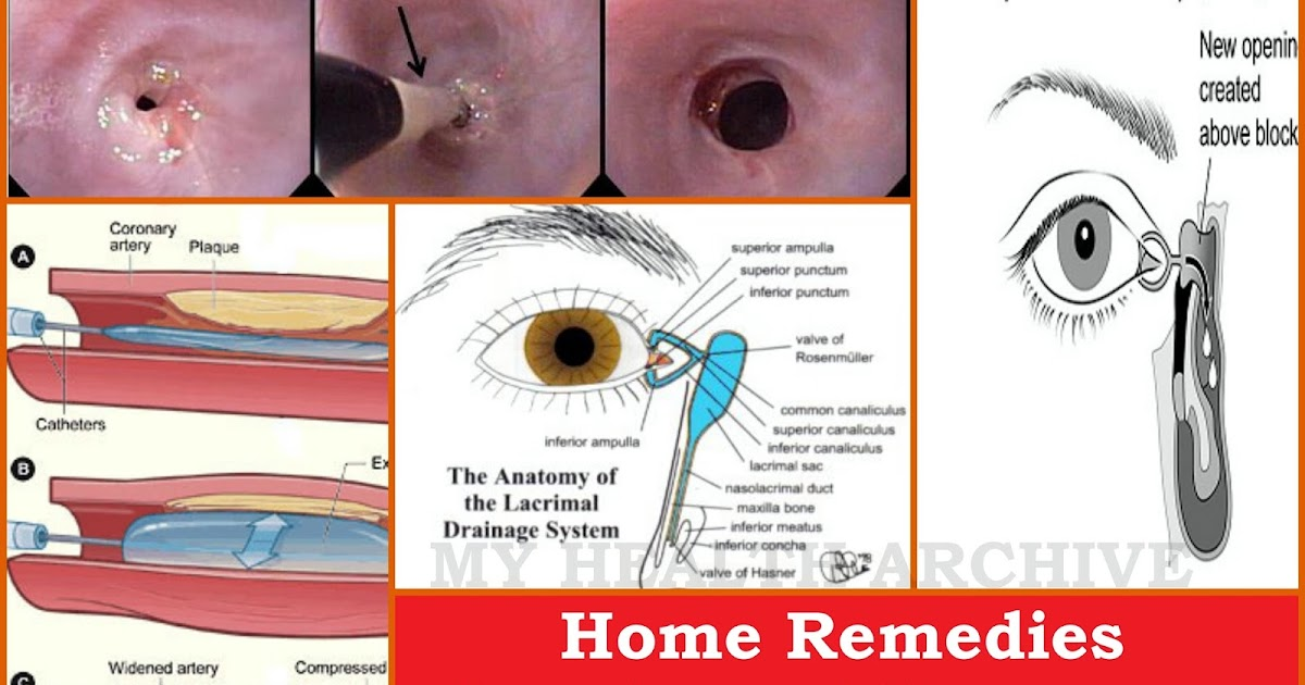 Home Remedies For Tear Duct Infection