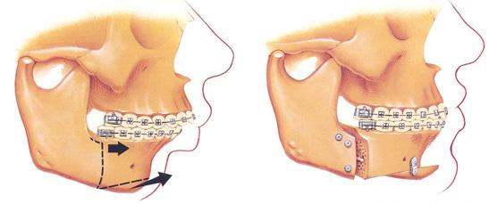 Maxillo-faciale orthodontie opération de la mâchoire