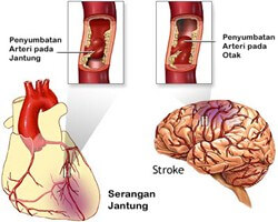 Tanaman Obat Untuk Penurun Kolesterol Jahat Secara Cepat