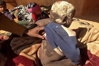 مرض نادر، تمثال حجري، عجائب وغرائب