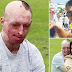 The VERY Sad Story Of Daniel Whose Girlfriend Changed His Life By Melting His Face With Acid