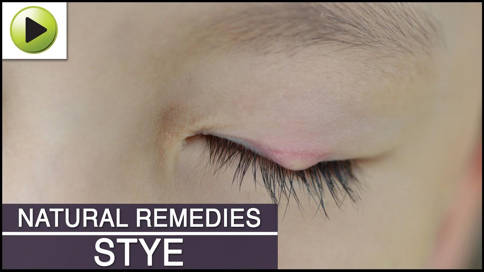 Stye Natural Ayurvedic Home Remedies Home Veda