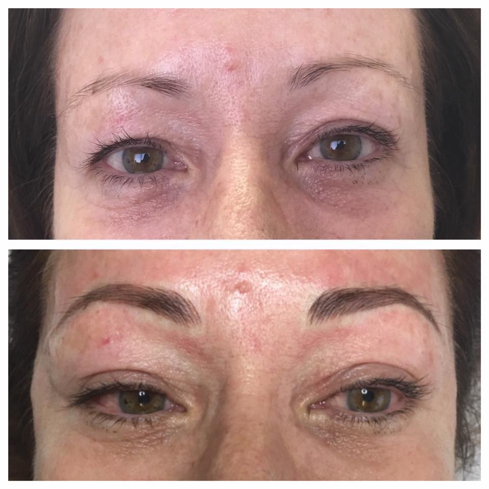 Selston Cosmetic Clinic Micro Blading Eyebrows With Semi