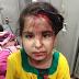 چکوال: کار اور رکشہ میں تصادم رکشہ میں سوار 4 افراد شدید زخمی
