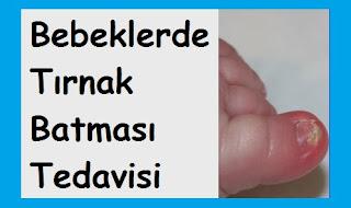 Bebeklerde Tırnak Batması Tedavisi
