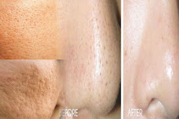 How To Get Rid of Open Pores Permanently With this Natural Ingredient!