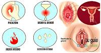 https://steviaven.blogspot.com/2018/04/aliviar-infeccion-vaginal-por-hongos.html